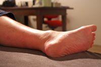 Manueel crushen van ganglion - Fysiotherapiewetenschap.com